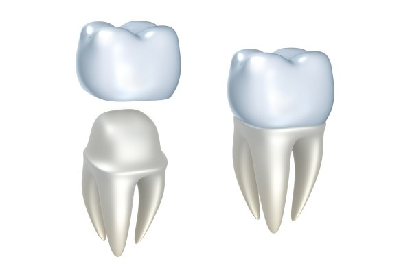 What To Do With A Loose Dental Crown